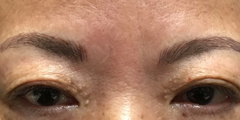 After-Permanent Makeup 2