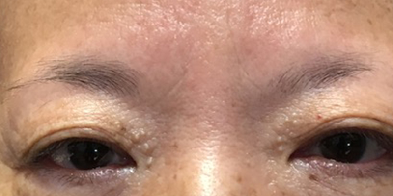 Before-Permanent Makeup 2