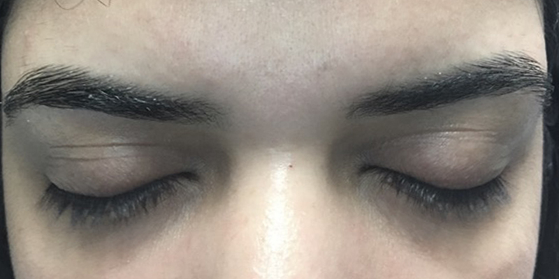 Before-Lashes 2