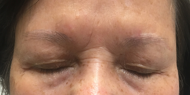 Before-Permanent Makeup 6