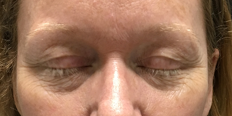 Before-Permanent Makeup 5